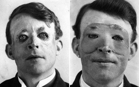 Walter Yeo y su primer transplante de cara